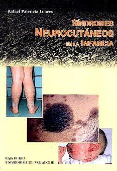 Portada del libro 9788477628064 Síndromes Neurocutáneos en la Infancia