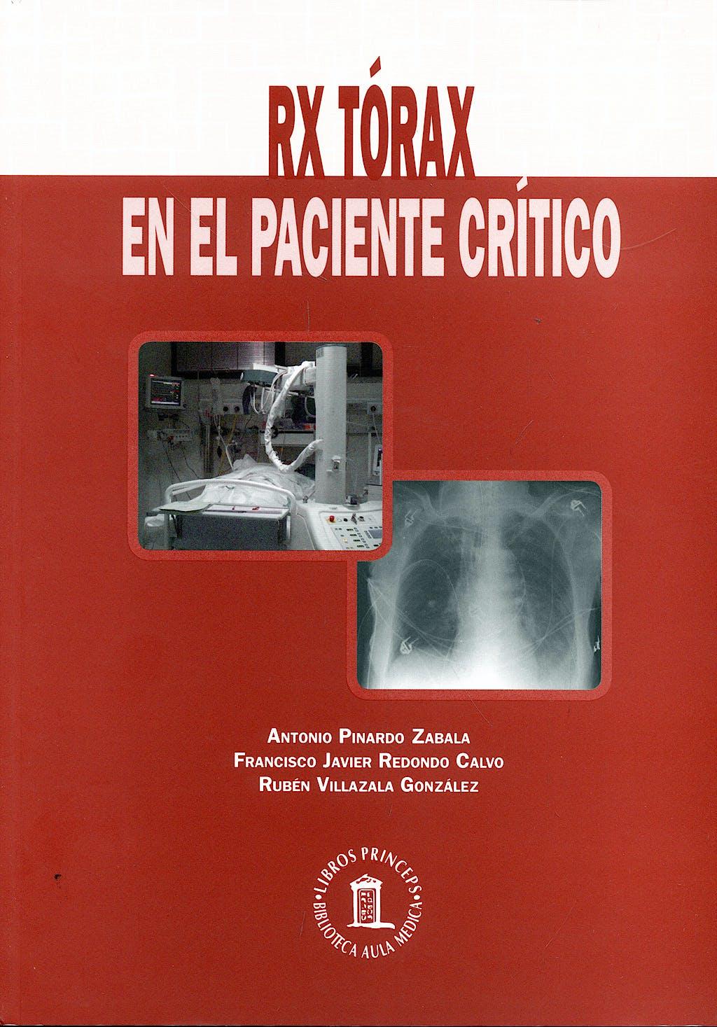 Portada del libro 9788478854752 Rx Torax en el Paciente Critico