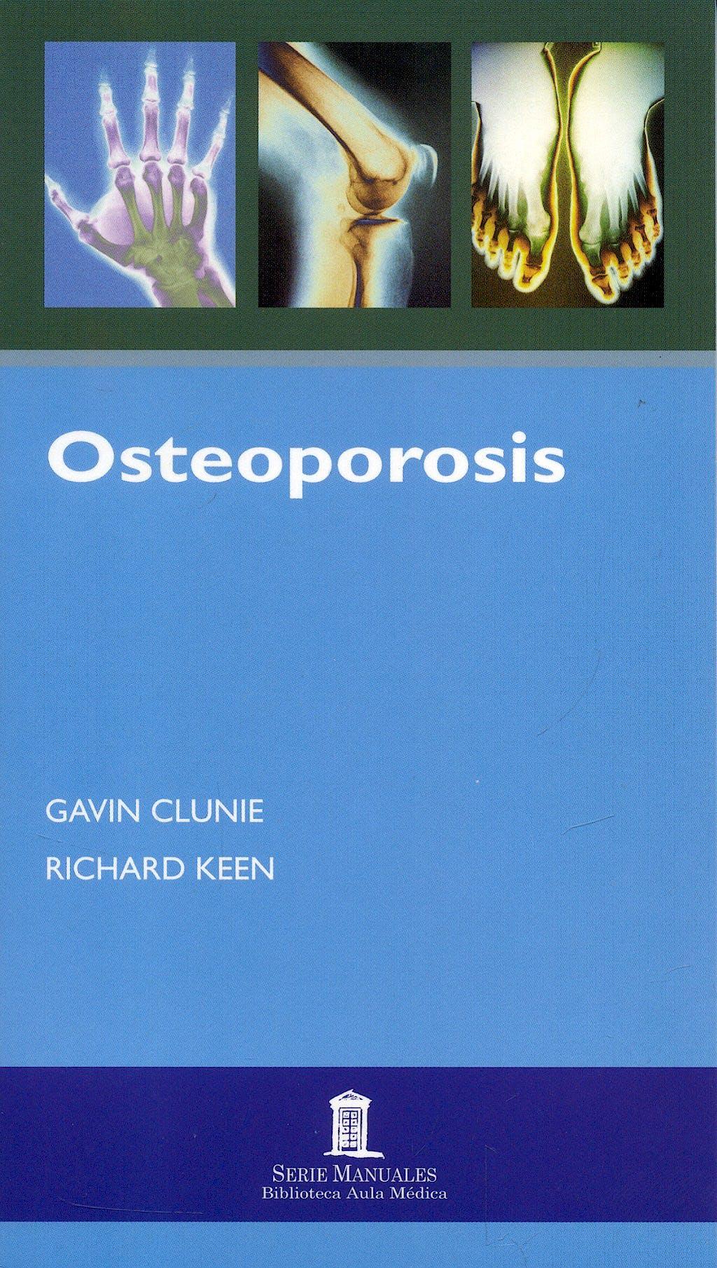 Portada del libro 9788478855049 Osteoporosis