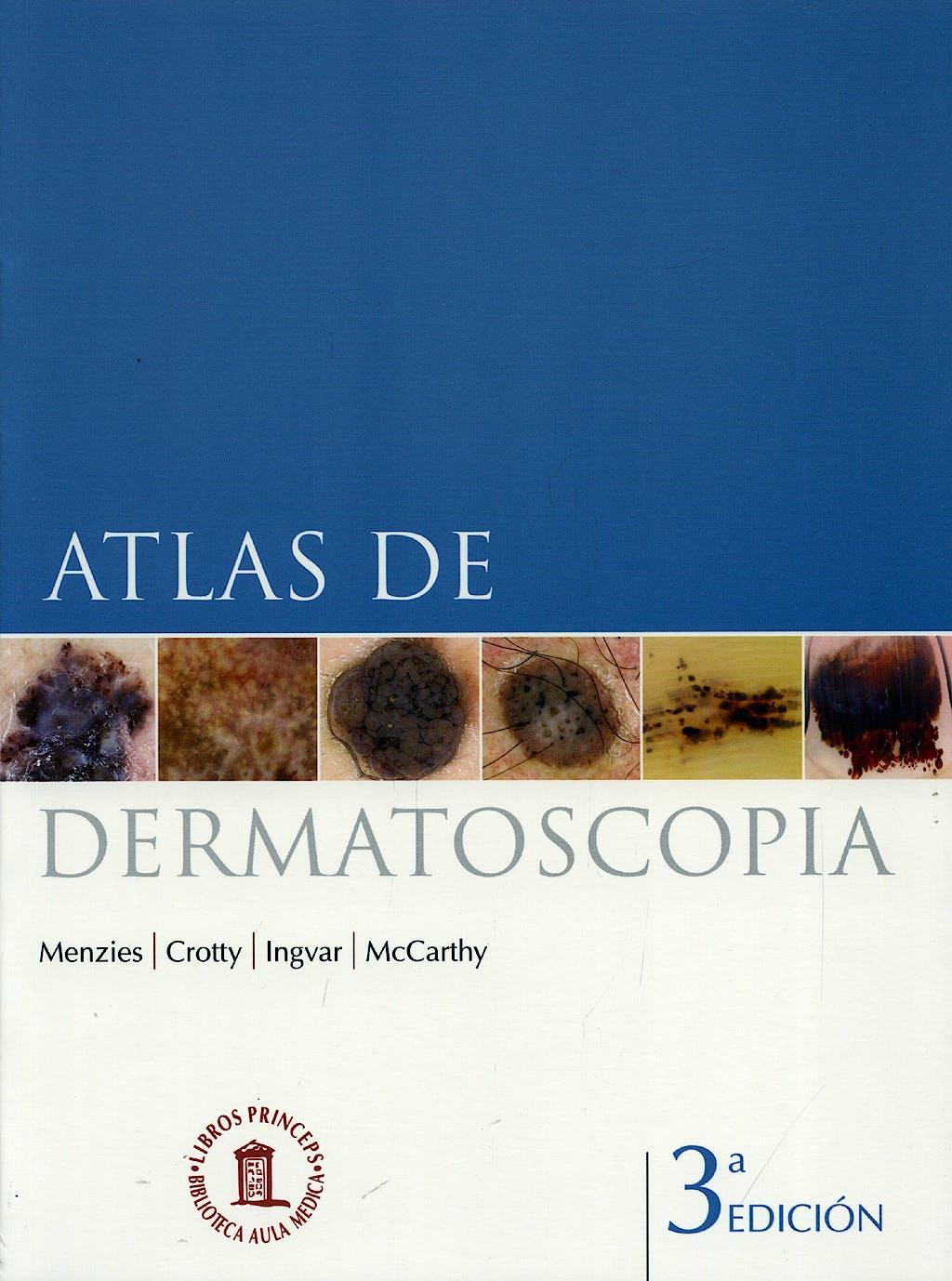 Portada del libro 9788478855131 Atlas de Dermatoscopia