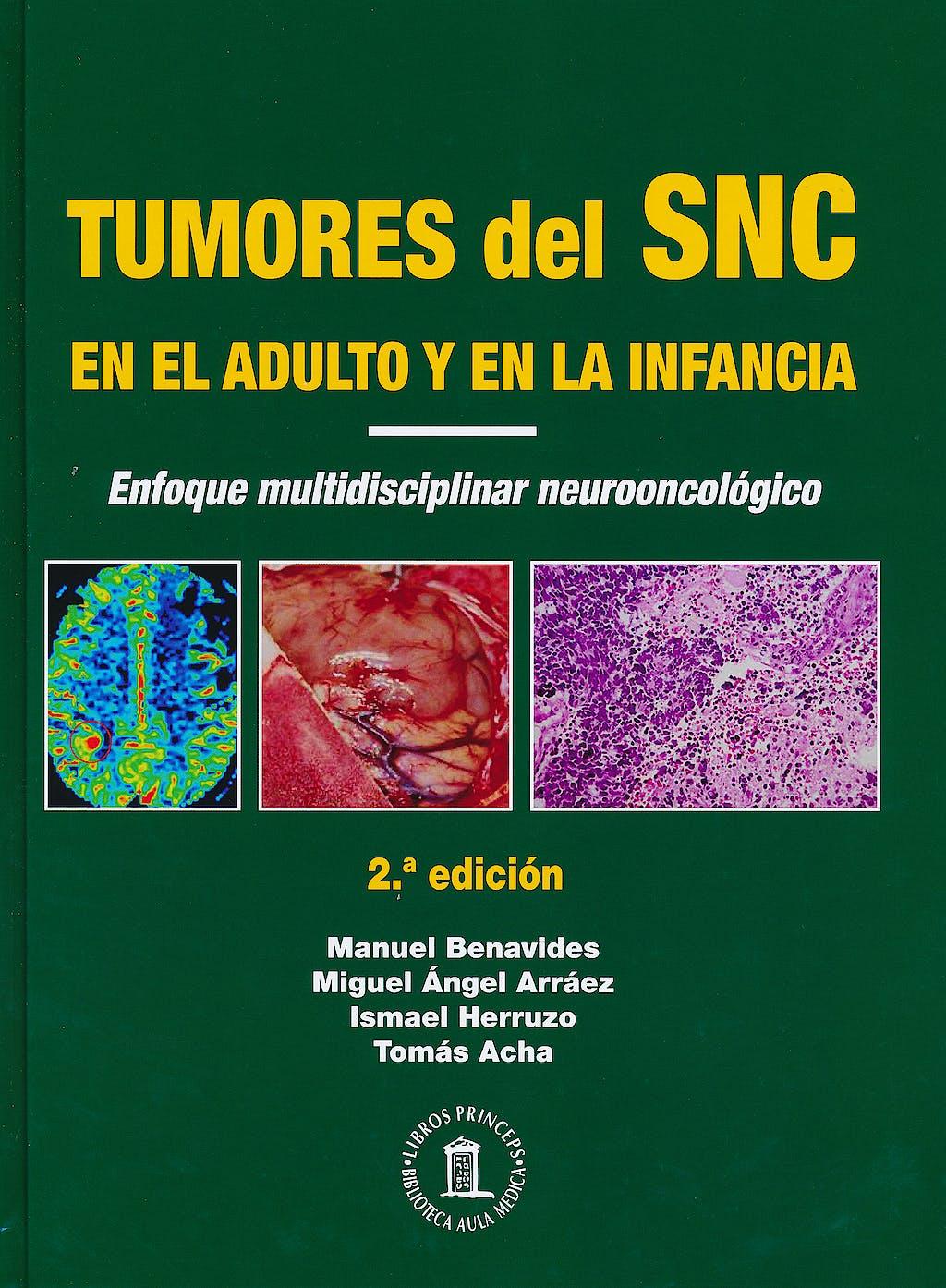 Portada del libro 9788478855391 Tumores del Sistema Nervioso Central en el Adulto y en la Infancia. Enfoque Multidisciplinar Neurooncológico