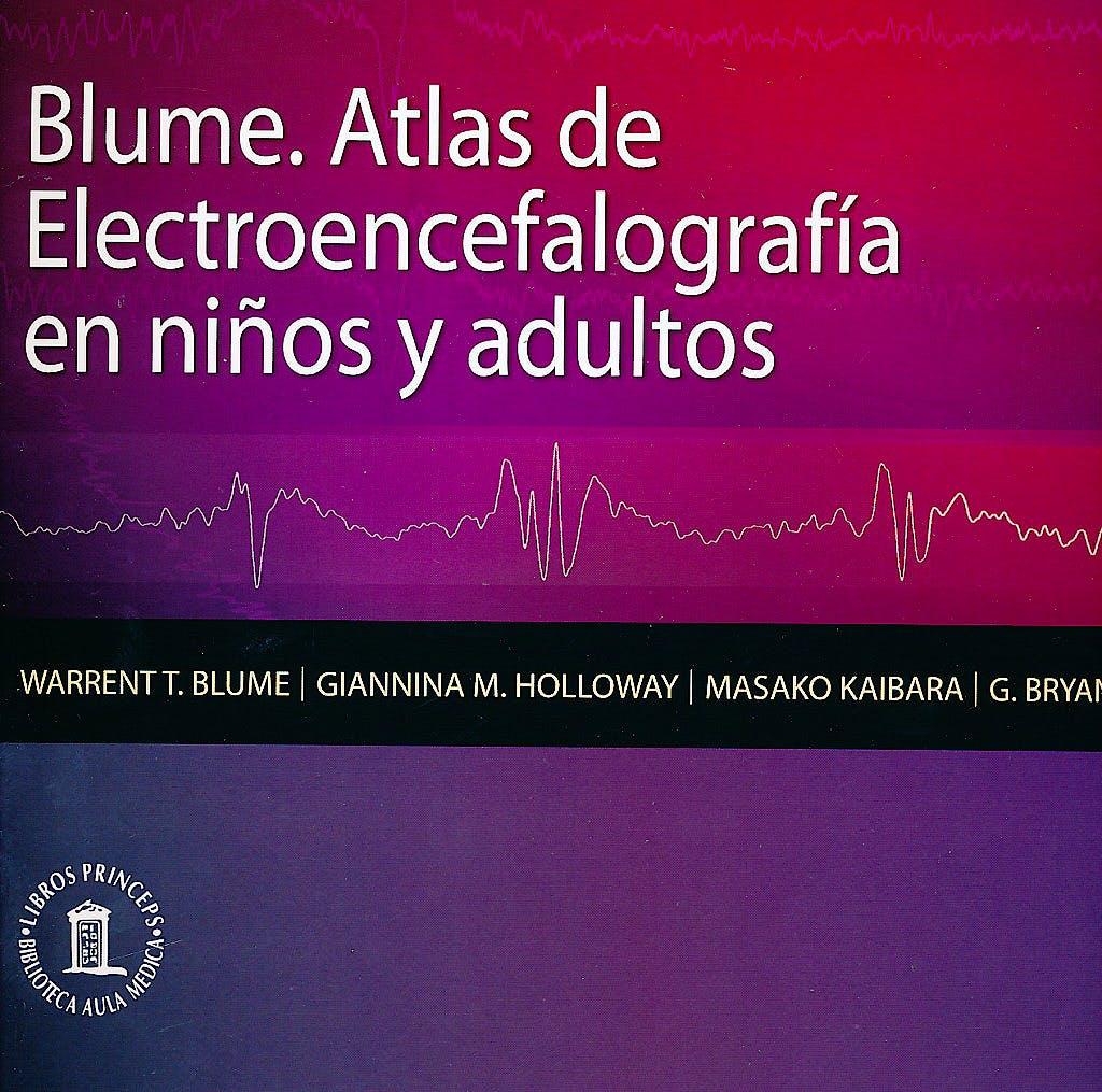 Portada del libro 9788478855476 Blume. Atlas de Electroencefalografia en Niños y Adultos