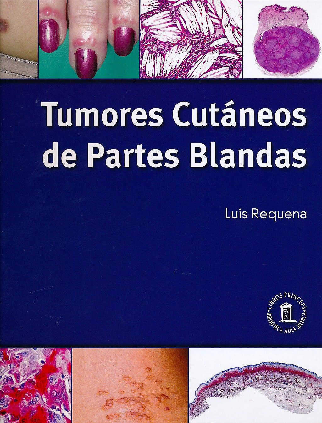 Portada del libro 9788478855537 Tumores Cutáneos de Partes Blandas (Tapa Blanda)