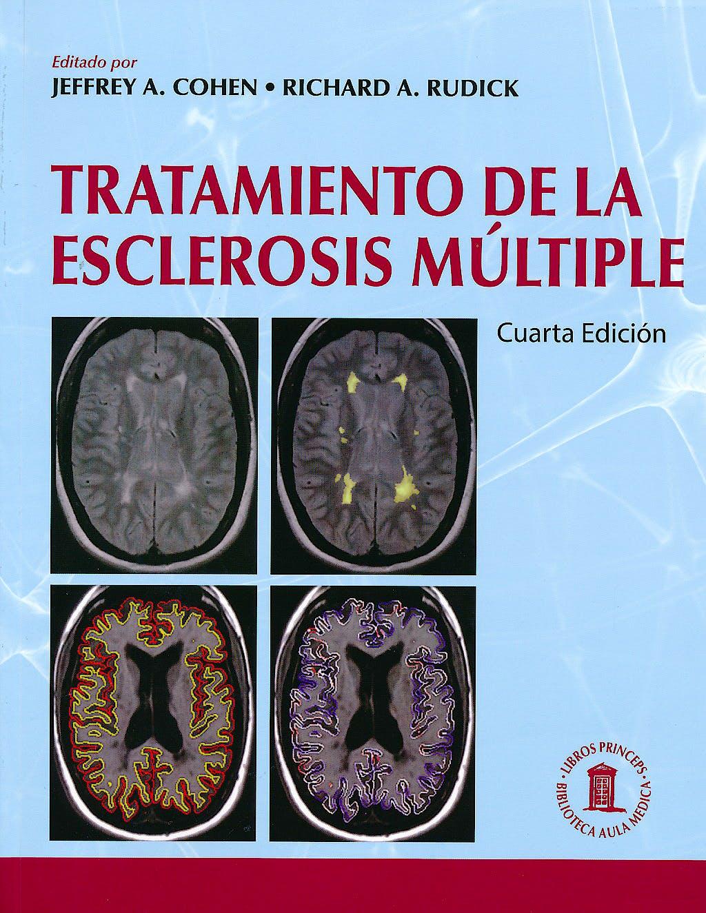 Portada del libro 9788478855650 Tratamiento de la Esclerosis Múltiple