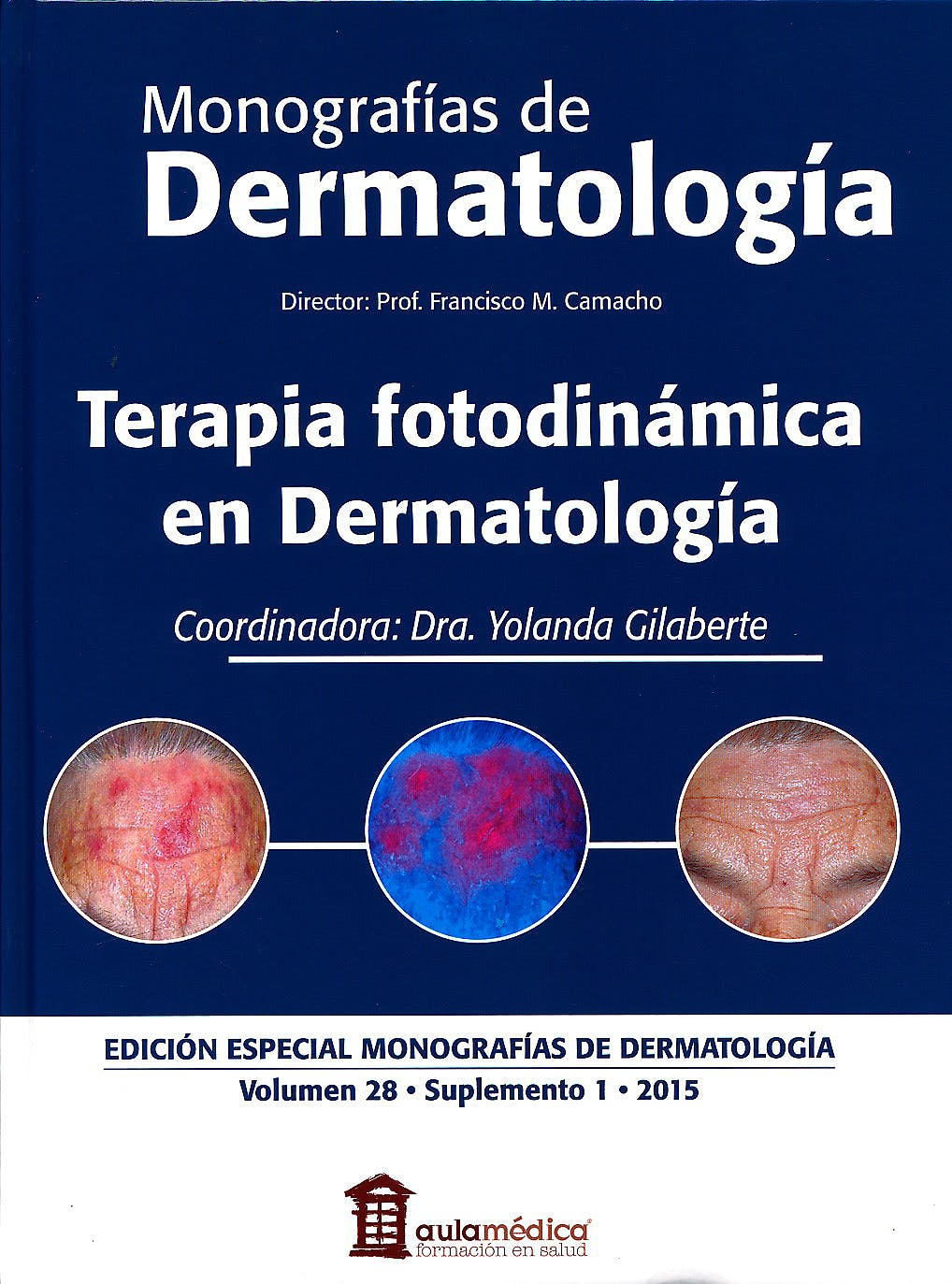 Portada del libro 9788478855834 Monografias de Dermatologia: Terapia Fotodinamica en Dermatologia. Vol. 28 Suplemento 1