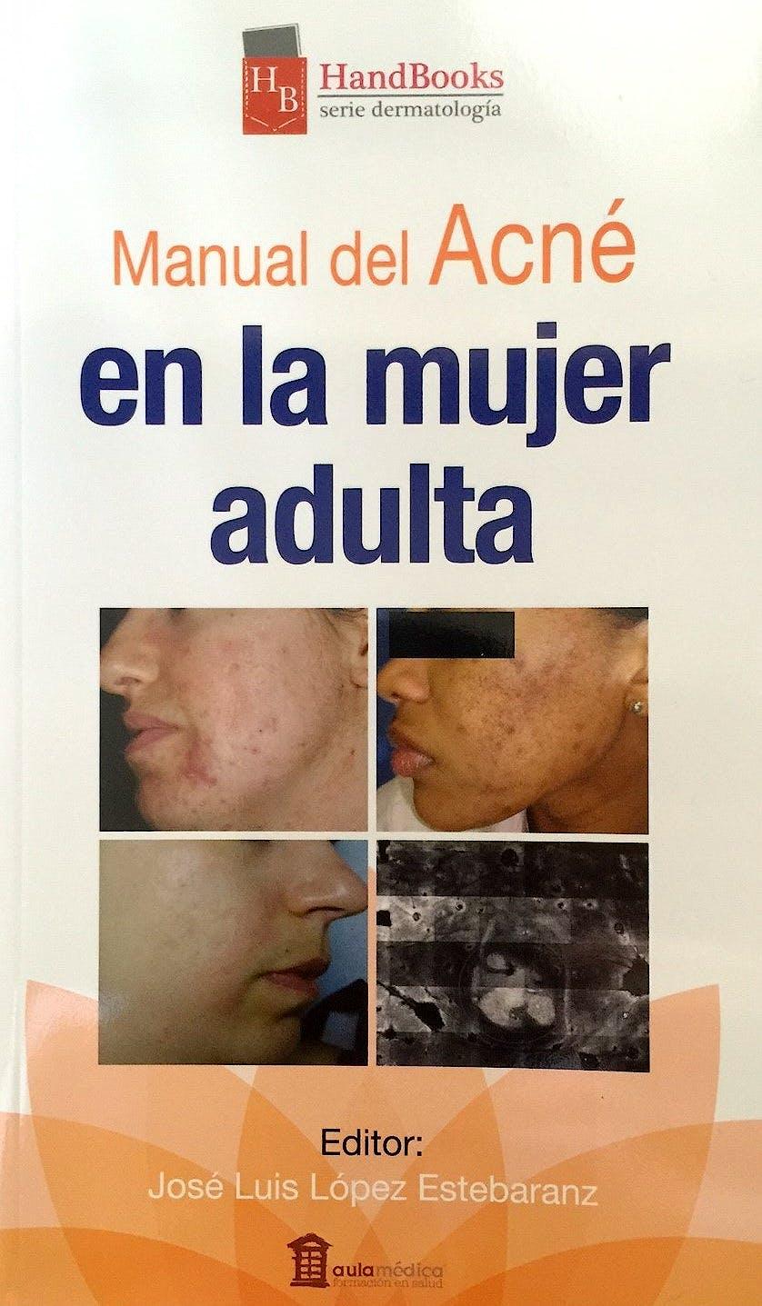 Portada del libro 9788478855926 Manual del Acné en la Mujer Adulta