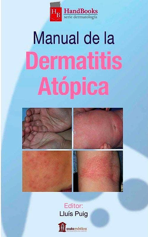 Portada del libro 9788478855988 Manual de la Dermatitis Atópica