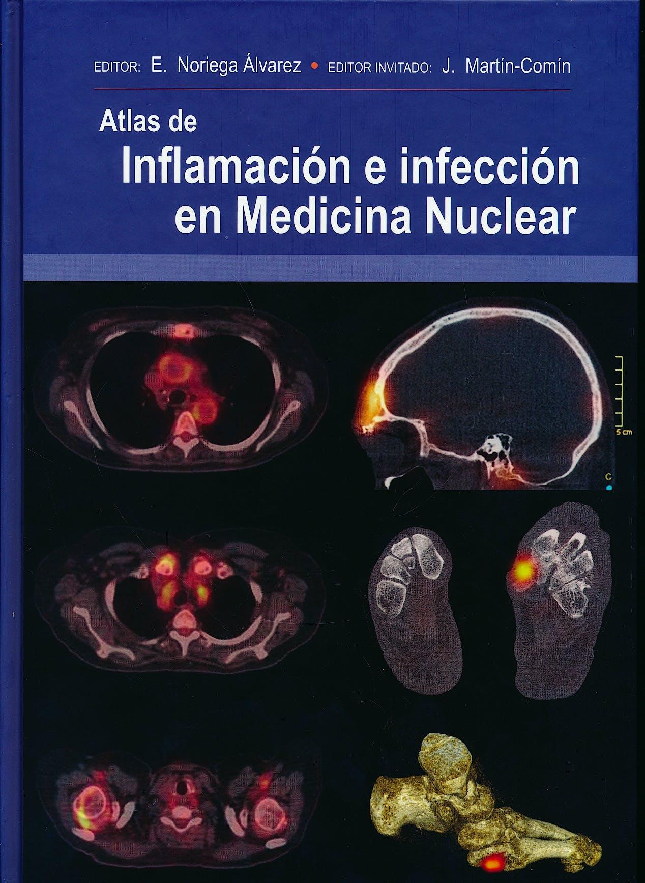 Portada del libro 9788478856183 Atlas de Inflamación e Infección en Medicina Nuclear