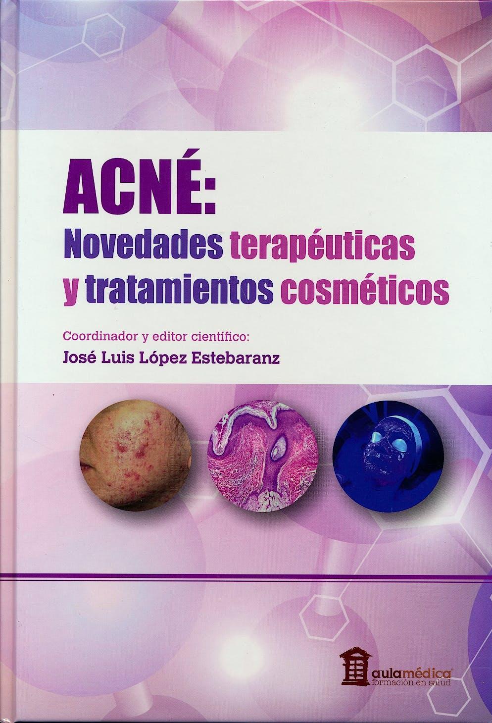 Portada del libro 9788478856398 Acné. Novedades Terapéuticas y Tratamientos Cosméticos