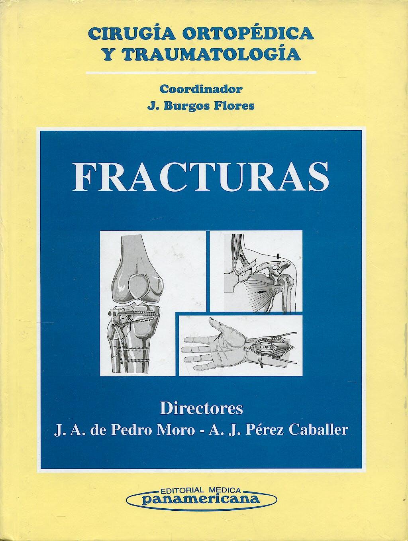 Portada del libro 9788479033446 Cirugia Ortopedica y Traumatologia: Fracturas