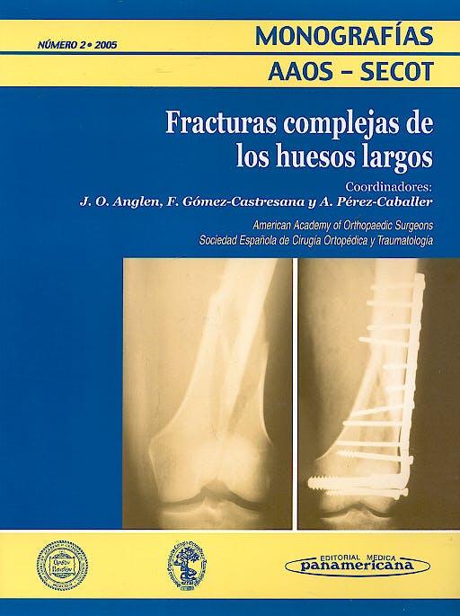 Portada del libro 9788479034788 Fracturas Complejas de los Huesos Largos (Monografías AAOS-SECOT Nº2 2005)