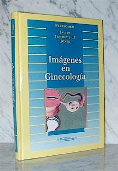 Portada del libro 9788479034825 Imagenes en Ginecologia
