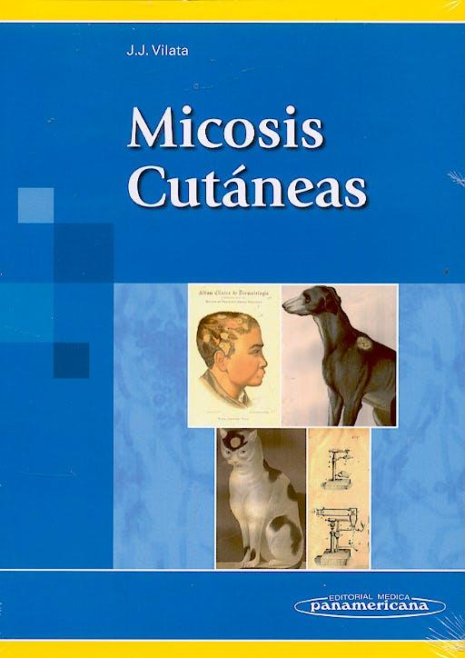 Portada del libro 9788479034849 Micosis Cutaneas