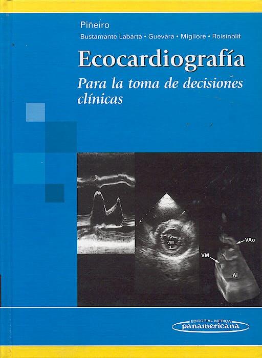 Portada del libro 9788479034986 Ecocardiografia