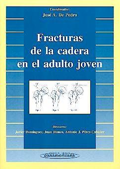 Portada del libro 9788479035969 Fracturas de la Cadera en el Adulto Joven