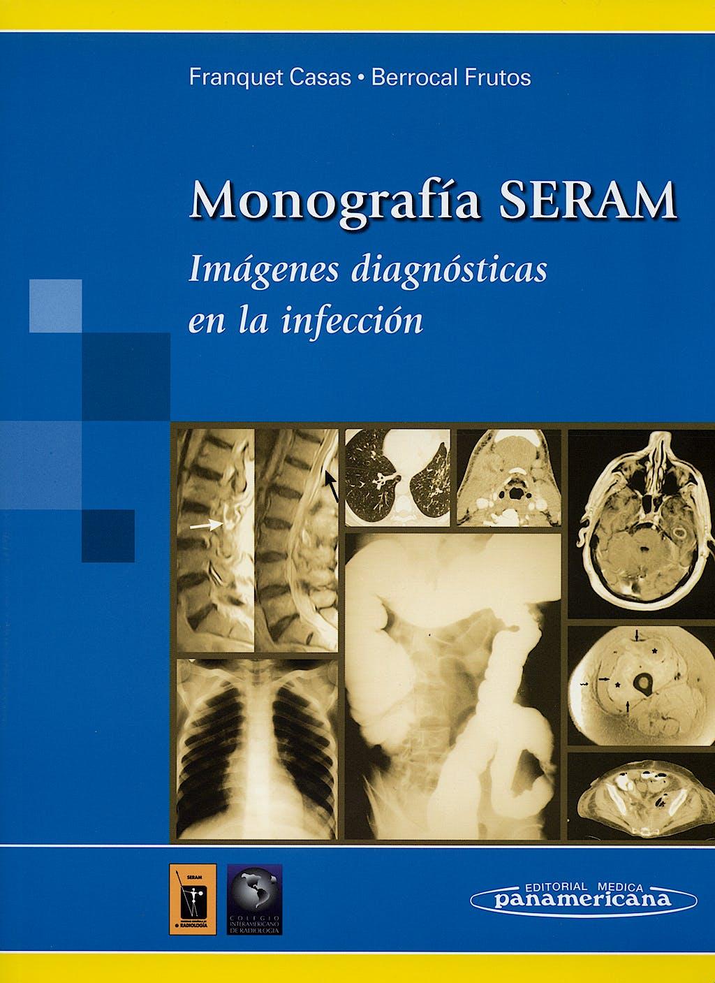 Portada del libro 9788479036010 Imágenes Diagnosticas en la Infeccion. Monografia Seram