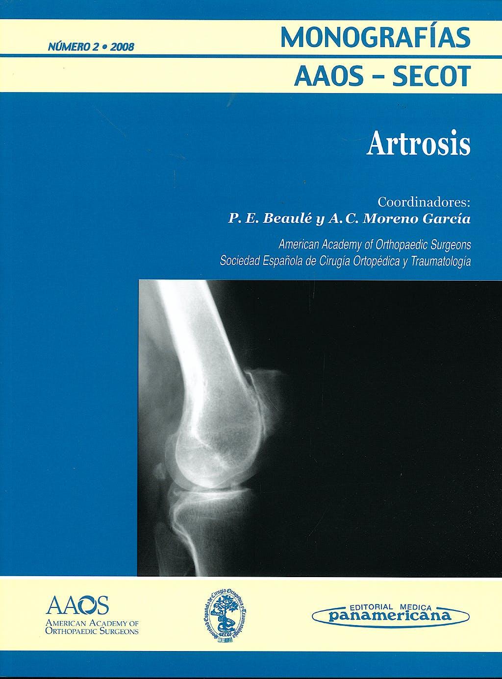 Portada del libro 9788479037451 Artrosis (Monografias Aaos-Secot Nº2 2008)
