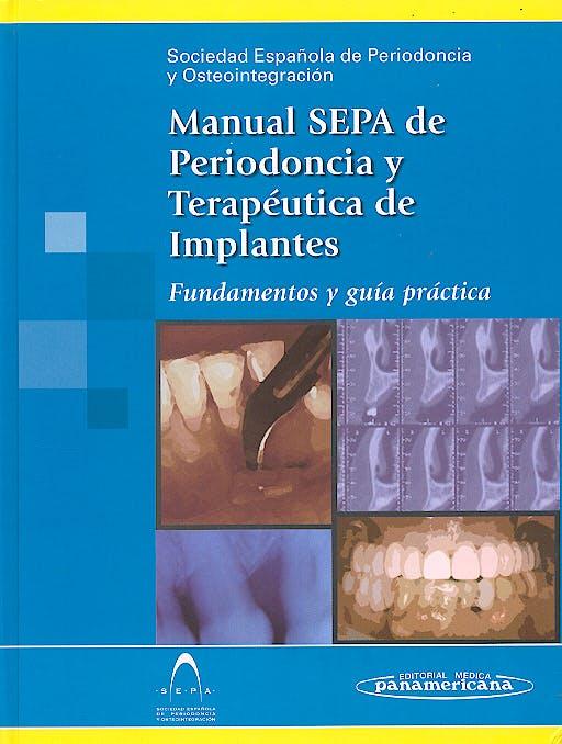 Portada del libro 9788479038793 Manual SEPA de Periodoncia y Terapéutica de Implantes. Fundamentos y Guía Práctica