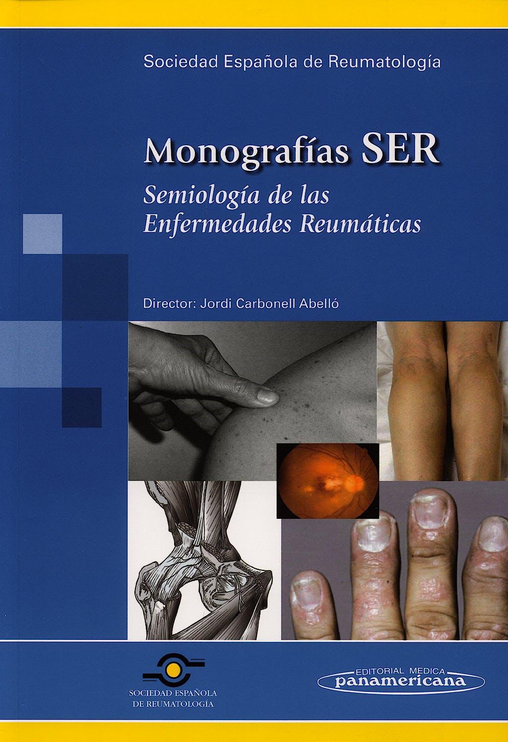 Portada del libro 9788479039073 Semiología de las Enfermedades Reumáticas. Monografías SER