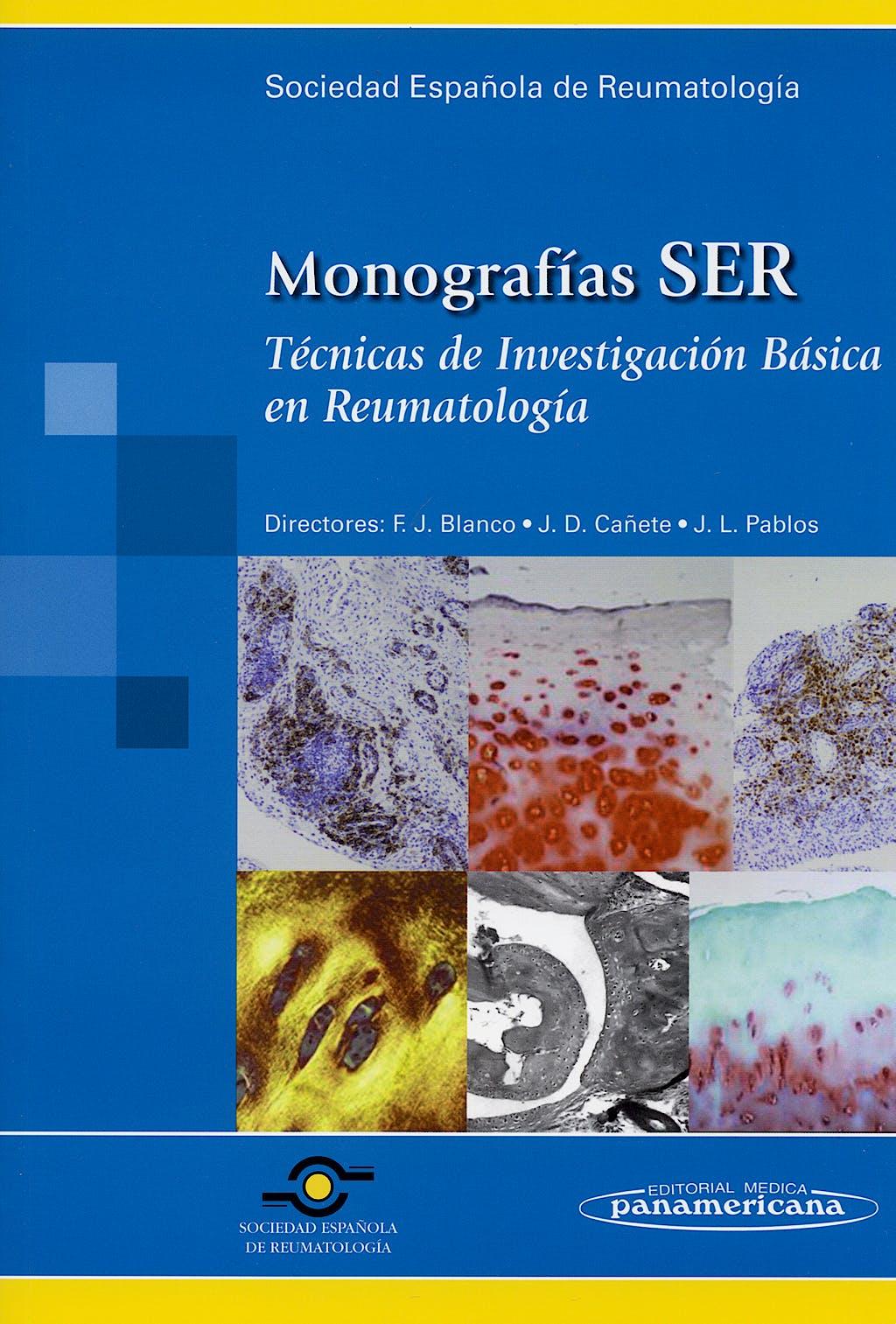 Portada del libro 9788479039080 Tecnicas de Investigacion Basica en Reumatologia. Monografias Ser
