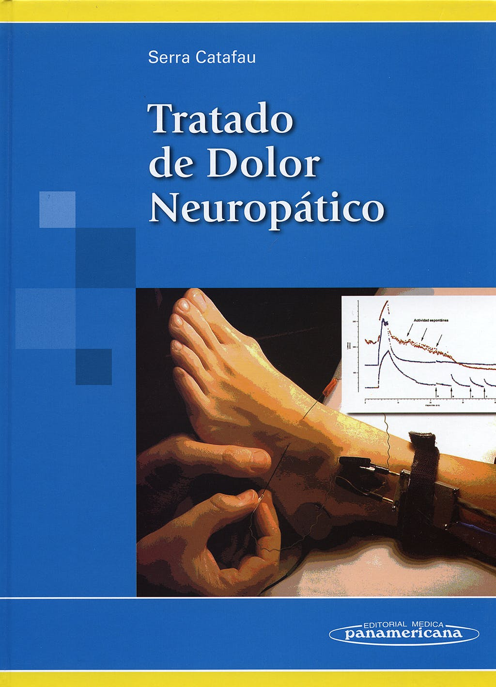 Portada del libro 9788479039738 Tratado de Dolor Neuropático
