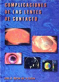 Portada del libro 9788479784010 Complicaciones de las Lentes de Contacto