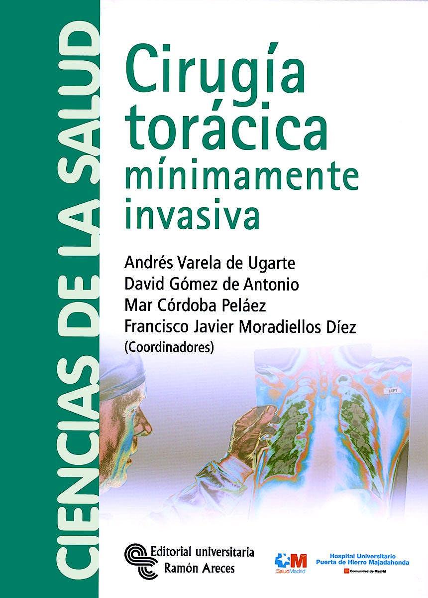 Portada del libro 9788480048910 Cirugía Torácica Mínimamente Invasiva