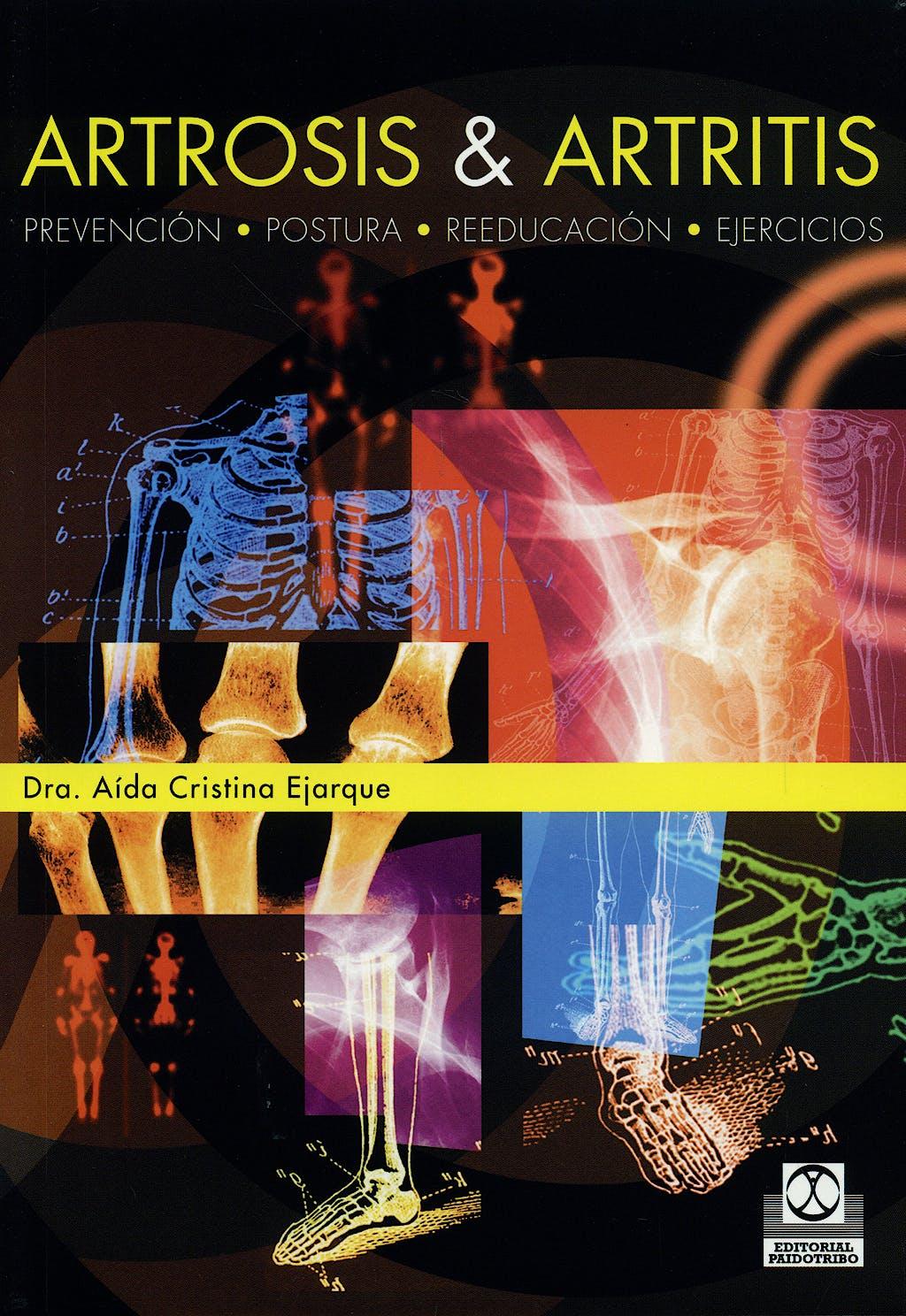 Portada del libro 9788480190404 Artrosis y Artritis. Prevencion, Postura, Reeducacion, Ejercicios
