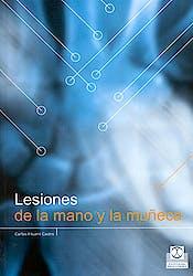 Lesiones de la Mano y la Muñeca