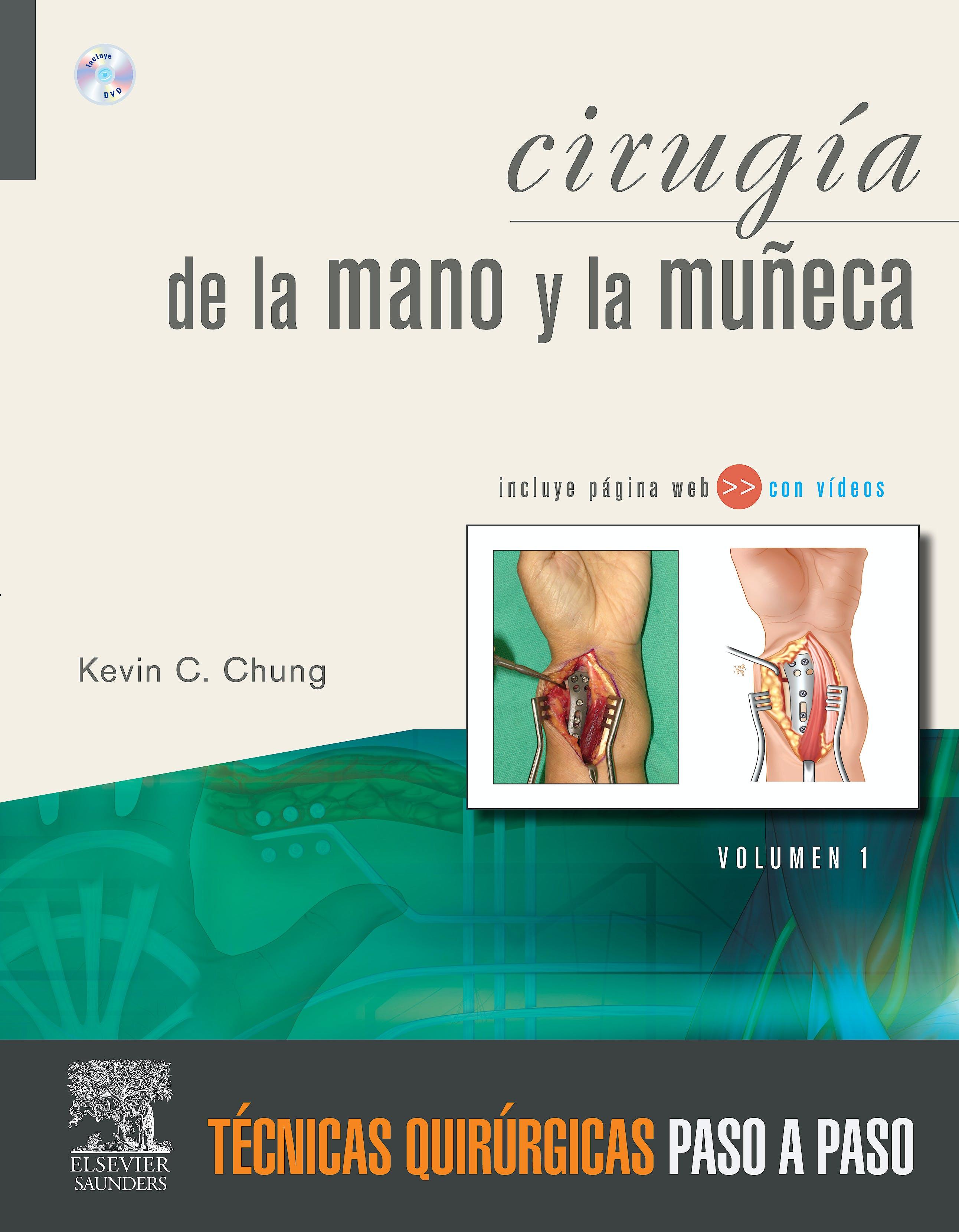 Producto: Cirugía de la Mano y la Muñeca, 2 Vols. Técnicas ...