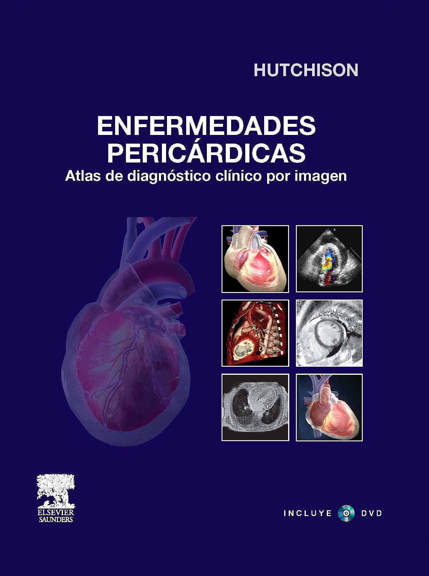 Producto: Enfermedades Pericardicas. Atlas de Diagnostico Clinico ...