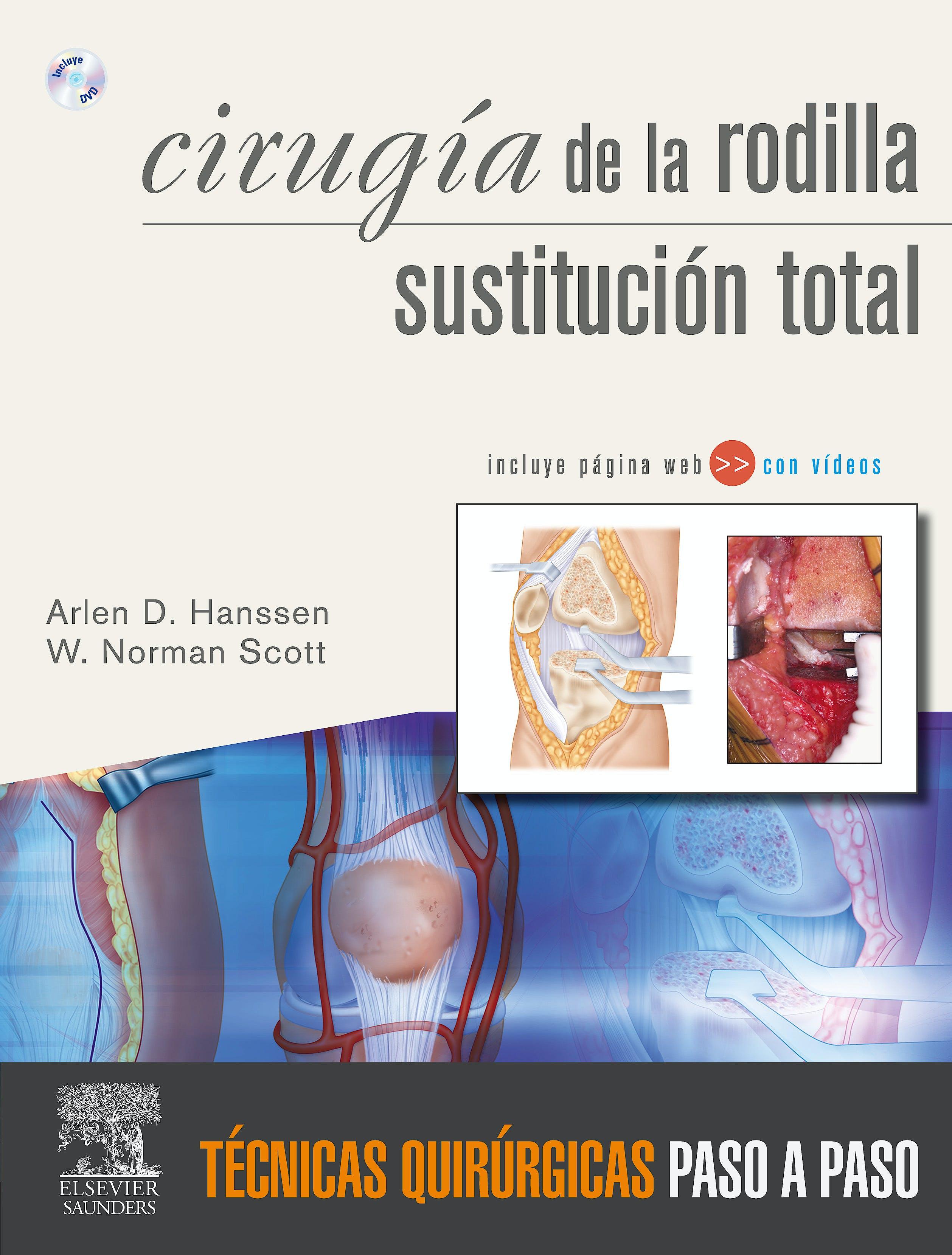 Portada del libro 9788480866613 Cirugia de la Rodilla. Sustitucion Total. Tecnicas Quirurgicas Paso a Paso + Dvd y Web (Ambos en Ingles)