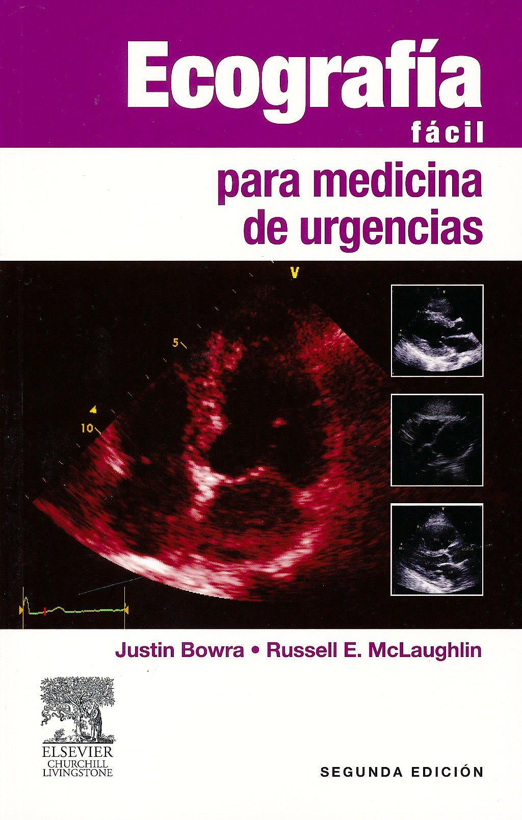 Portada del libro 9788480869553 Ecografía Fácil para Medicina de Urgencias