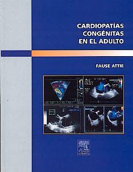Portada del libro 9788481746358 Cardiopatias Congenitas en el Adulto