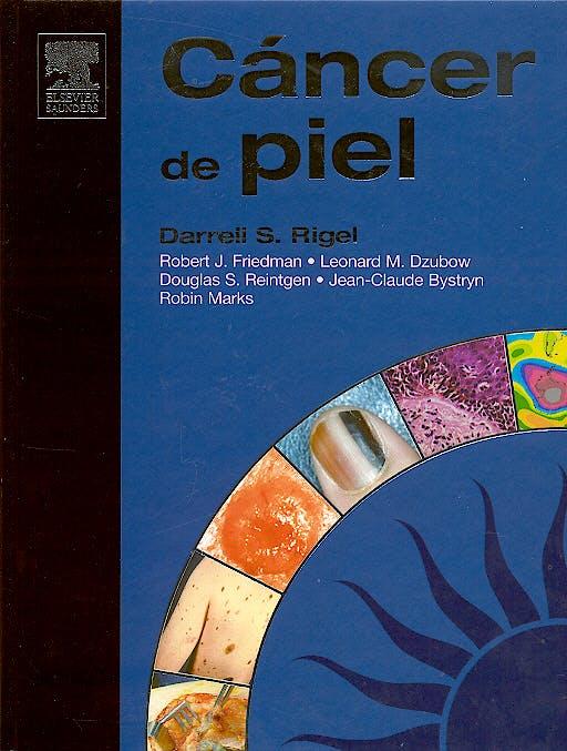 Portada del libro 9788481748758 Cáncer de Piel + CD