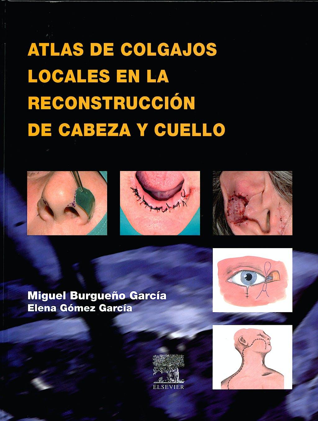 Portada del libro 9788481749625 Atlas de Colgajos Locales en la Reconstrucción de Cabeza y Cuello