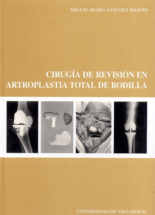 Portada del libro 9788484483618 Cirugia de Revision en Artroplastia Total de Rodilla