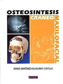 Portada del libro 9788484730804 Osteosintesis Craneo-Maxilofacial