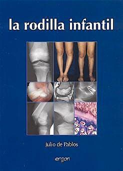 Portada del libro 9788484732082 La Rodilla Infantil