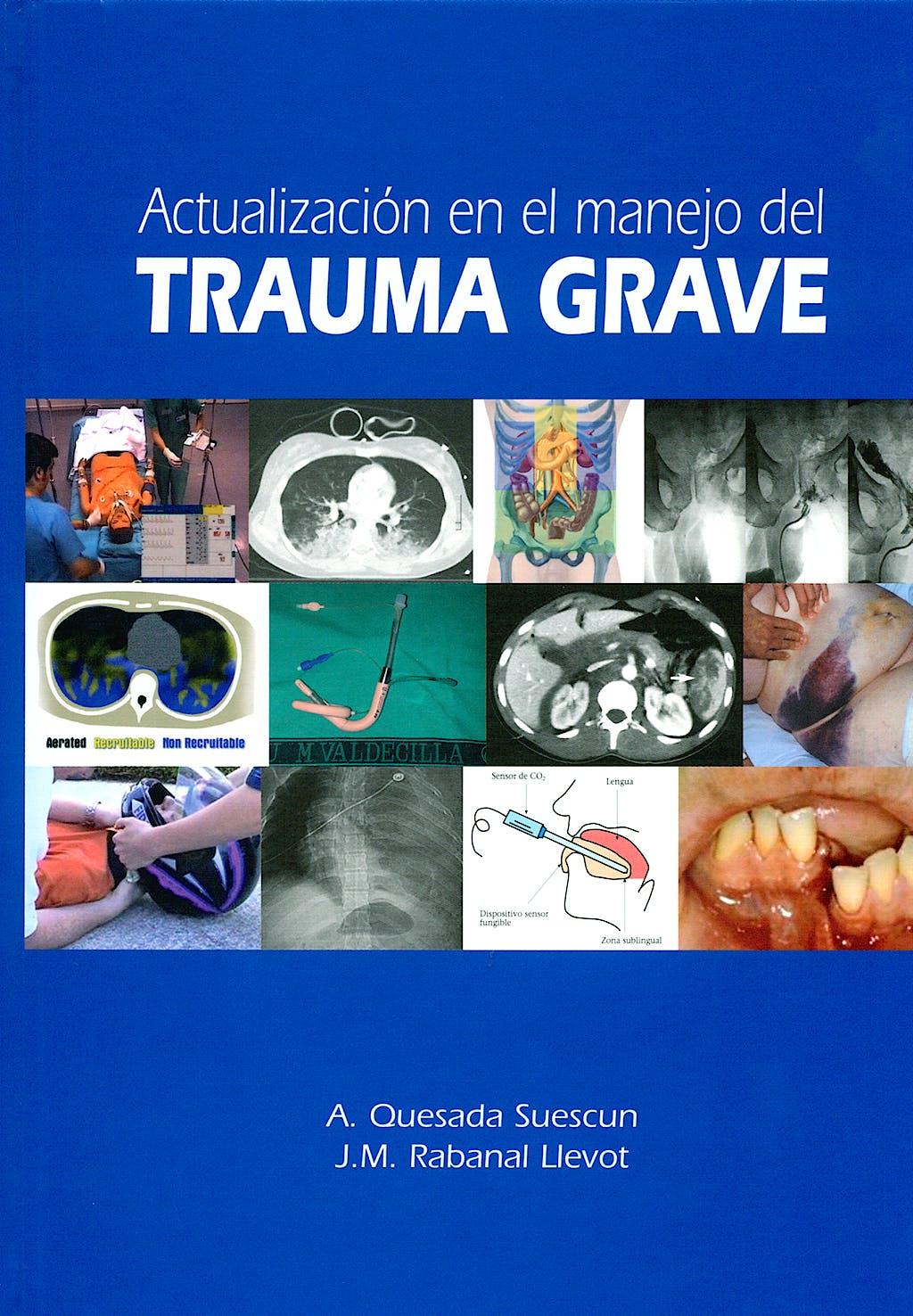 Portada del libro 9788484734840 Actualizacion en el Manejo del Trauma Grave