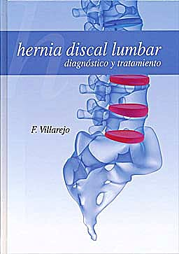 Portada del libro 9788484739234 Hernia Discal Lumbar. Diagnostico y Tratamiento