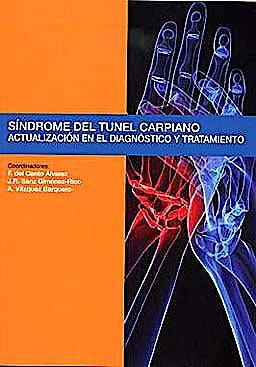 Portada del libro 9788484739296 Sindrome del Tunel Carpiano. Actualizacion en el Diagnostico y Tratamiento