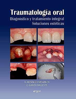 Portada del libro 9788484739814 Traumatologia Oral. Diagnostico y Tratamiento Integral. Soluciones Esteticas