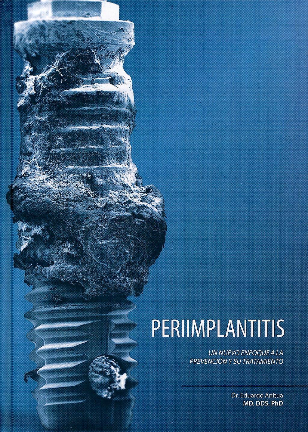 Portada del libro 9788487673290 Periimplantitis. Un Nuevo Enfoque a la Prevención y Su Tratamiento