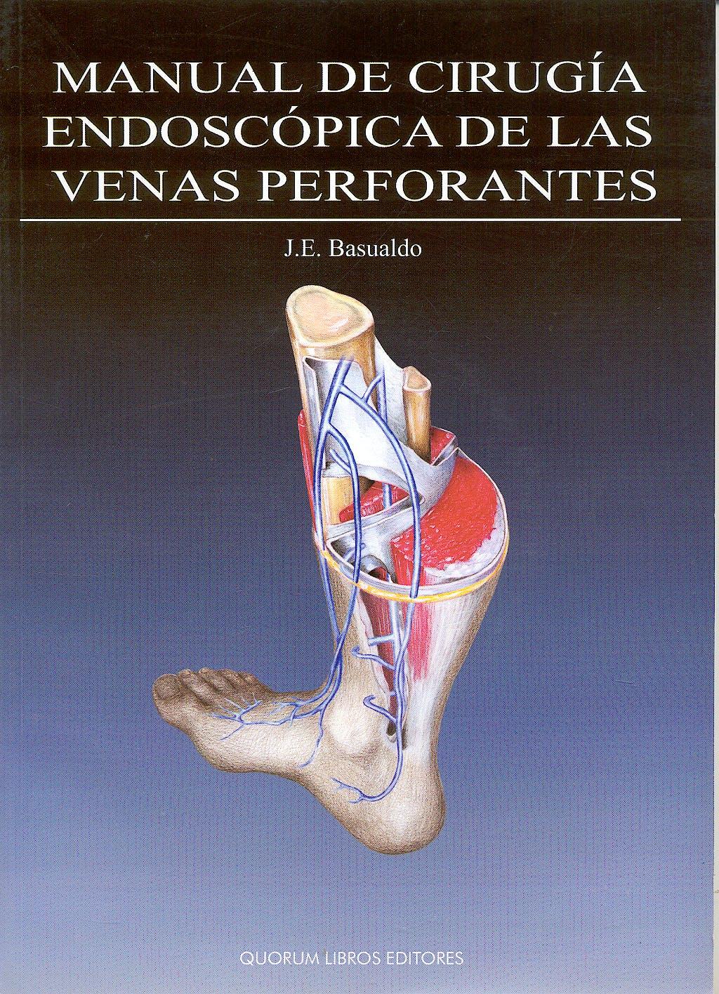 Portada del libro 9788488599346 Manual de Cirugia Endoscopica de las Venas Perforantes