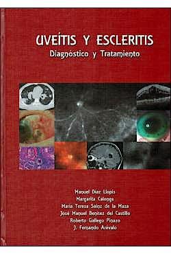 Portada del libro 9788489085565 Uveitis y Escleritis. Diagnóstico y Tratamiento