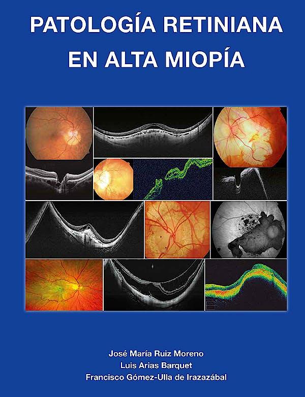 Portada del libro 9788489085572 Patología Retiniana en Alta Miopía