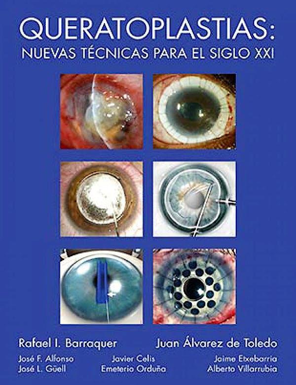 Portada del libro 9788489085626 Queratoplastias: Nuevas Técnicas para el Siglo XXI