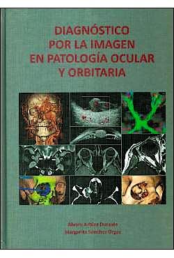 Portada del libro 9788489085657 Diagnóstico por la Imagen en Patología Ocular y Orbitaria