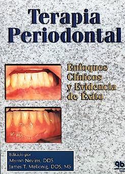 Portada del libro 9788489873216 Terapia Periodontal: Enfoques Clinicos y Evidencia de Éxito